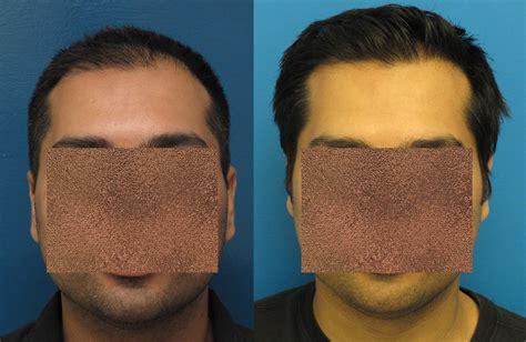 great frontal hair line 1000 graft dr wong 2160 grafts 9 months fut baldtruthtalk com