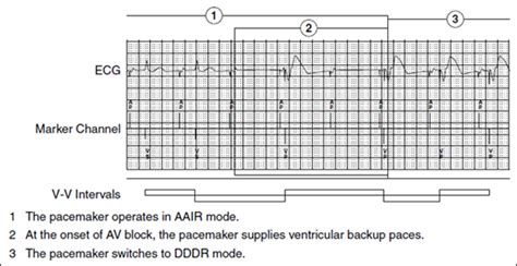 Medtronic Background Check Managed Ventricular Pacing Mvp Feature Medtronic Academy
