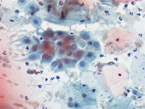 cellule metaplastiche pap test pap smear cytology site
