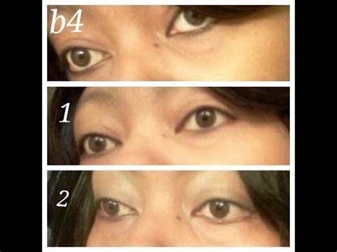 change eye color with honey week 2 of honey eye drops update 4 eye pics at 3