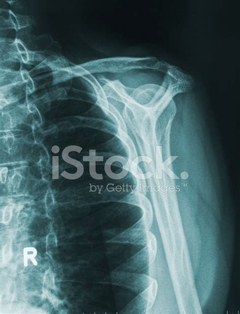 man ray photofile 0500410658 x ray image shoulder stock photos freeimages com