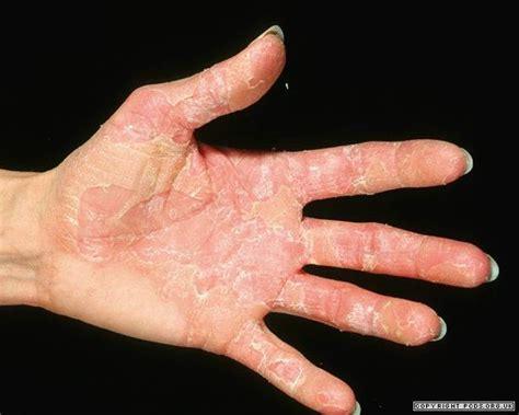 Skin Shedding Disease peeling skin conditions primary care dermatology society