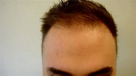 bad hair transplants fixing a bad hair transplant result youtube