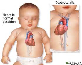 which side does st go on dextrocardia medlineplus medical encyclopedia
