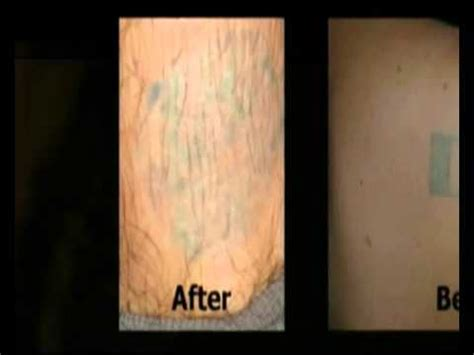 homemade tattoo removal cream removal