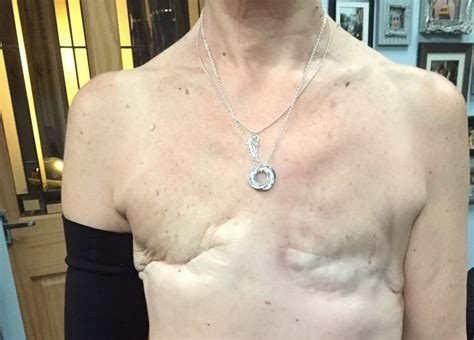 tattoo over chest scar 5 years after remission woman gets mastectomy tattoo on