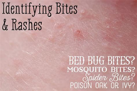 mosquito bed bug spider bite differences healdove