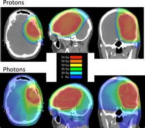 Photon Proton Radiation Astrocytoma Options