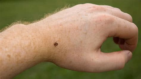 tick on symptoms what do ticks look like on humans www pixshark images galleries with a bite