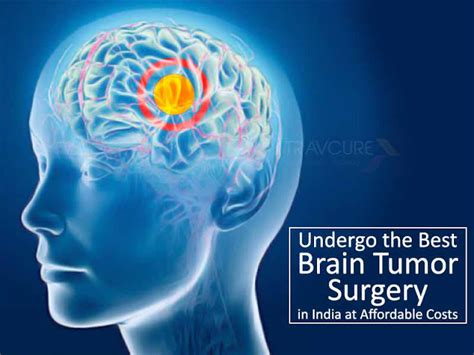 brain tumor mood swings medical tourism in india