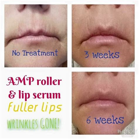 Khayla Serum 17 best images about how to restore aging chapped