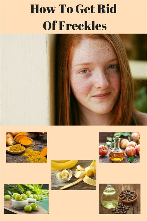 10 Ways To Get Rid Of Freckles by 10 Best Way To Get Rid Of Freckles Health Plan
