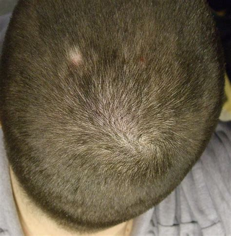 bald spot on growing hair in bald spots hair tomuch us