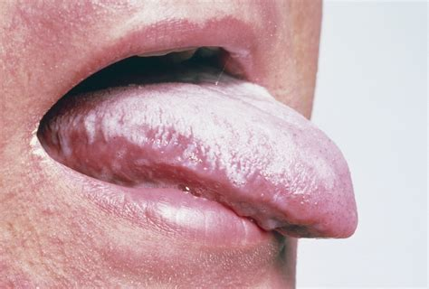 White Tongue Detox by The Importance Of Patients Health And Nurses
