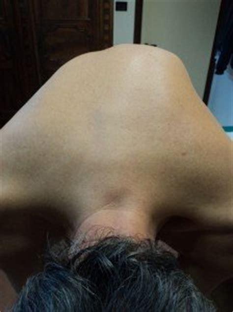 scoliose lombaire et dorsale exercice posturales et corset