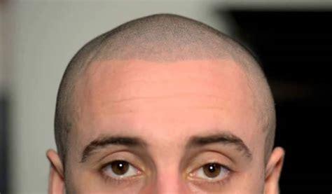 hair tattoo hair scalp micropigmentation s hairstyles
