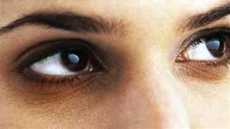 Mata Panda 7 tips untuk hilangkan lingkaran gelap bawah mata abang