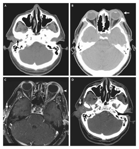 Imagenes Medicas Tac | im 225 genes m 233 dicas