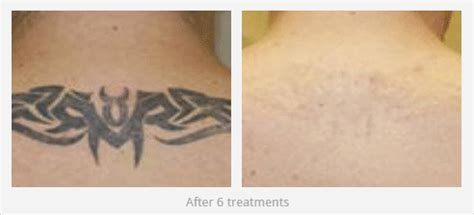 laser tattoo removal history factors to consider when removing tattoos http