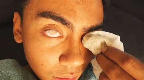 going blind help i am going blind