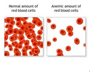 Iron deficiency anemia causes symptoms treatment pictures