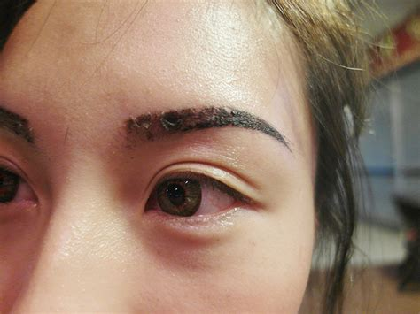tattooed eyebrows scabbing august 2013 pony