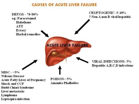 liver failure stages 27 best images about stages of liver damage on fatty liver cat health and