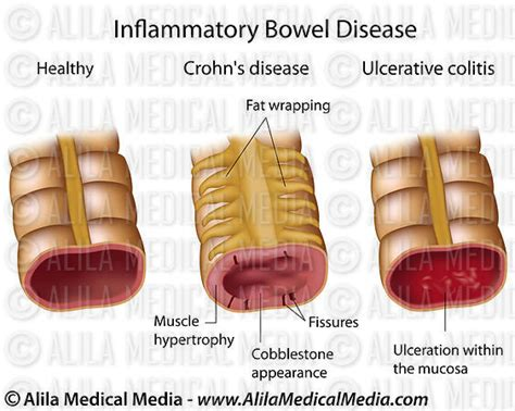 Types Of Stool Infections by Alila Media Inflammatory Bowel Disease Labeled
