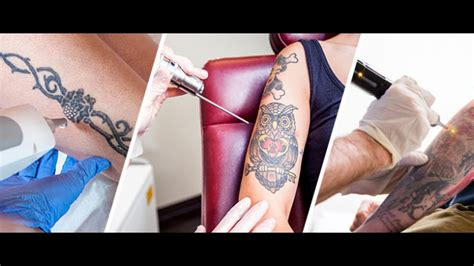 new tattoo removal methods what you need to about removal options and