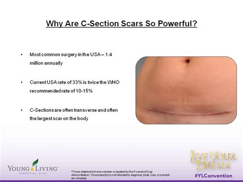 pain during after c section why are c section scars so powerful