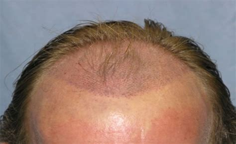 permanent head hair without surgery 5 permanent cures to treat hair loss menscosmo com