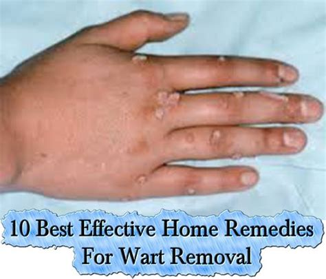 1000 ideas about best wart remover on mole