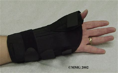 Scaphoid Fracture of the Wrist | eOrthopod.com Fractured Wrist Treatment