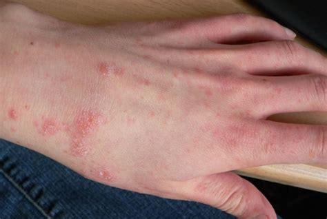 best antihistamine for allergies the best antihistamines to fight allergic reactions