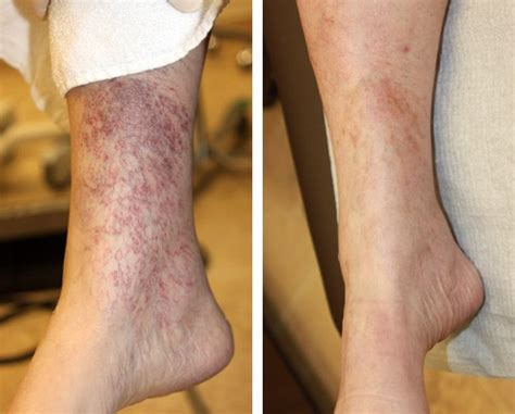 spider veins on the legs treatments varicose veins vein center