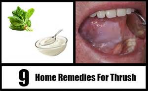 home remedy for thrush 9 thrush home remedies treatments cure for