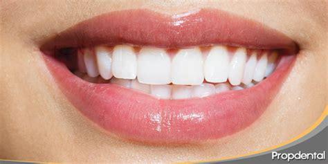 imagenes de bellas sonrisas est 233 tica dental la importancia de una sonrisa bonita