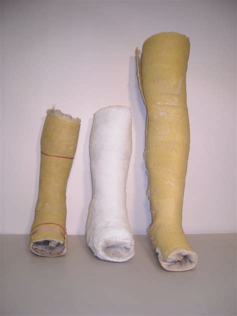 Or Casts Plaster Cast Leg Prop Hire And Deliver