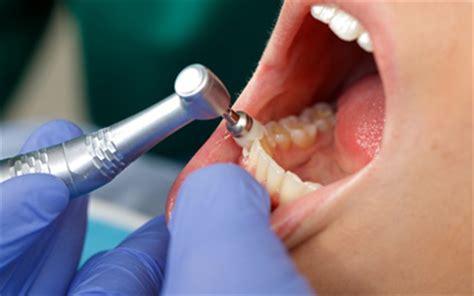imagenes de cubetas odontologicas cl 237 nica dental ramos servicios cl 237 nica dental ramos