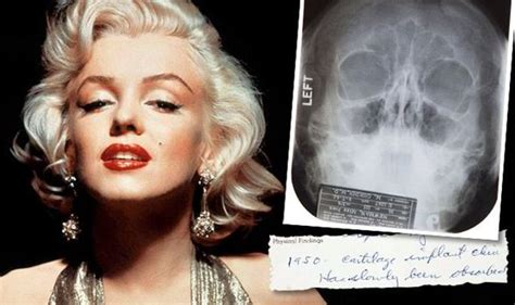 how did marylin die did marilyn surgery records and x rays the hammer for 163 20 000 world news