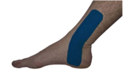 dolore polpaccio interno taping caviglia e polpaccio kintex sport