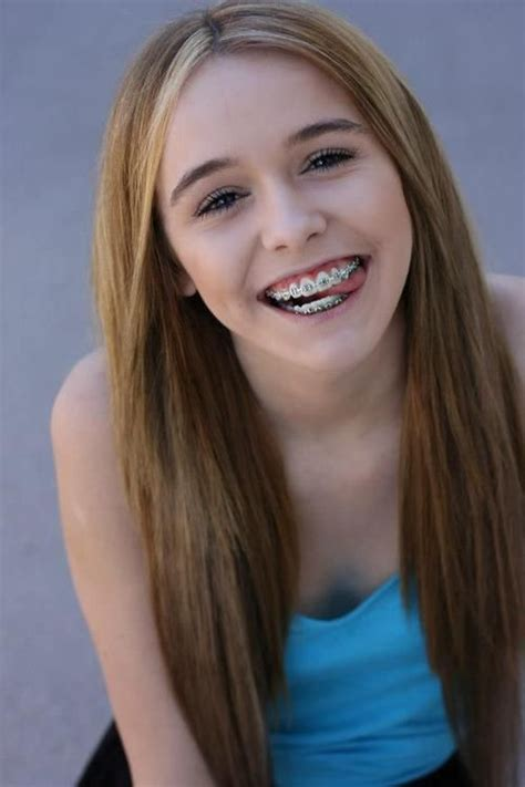 young teen girl face with braces 44 best brace faces images on pinterest acacia brinley