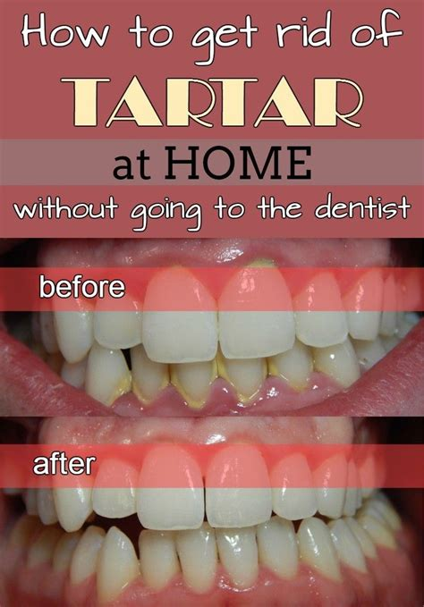 how to get rid of tartar at home without going to the