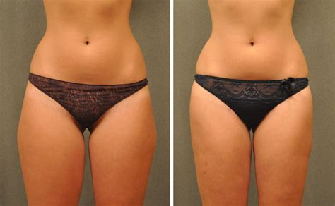 liposuction inner thighs before after lipo gallery
