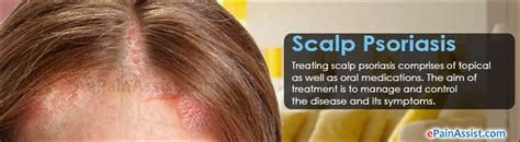 best hairstyles for scalp psoriasis scalp psoriasis treatment home remedies prognosis