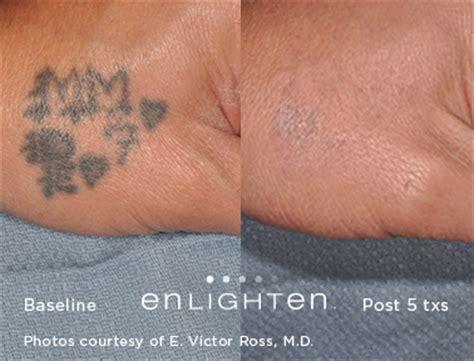 enlever tattoo quebec vergetures violettes traitement qu 233 bec