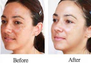 Gallery for gt skin bleaching results