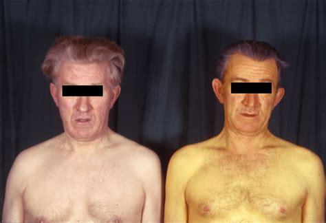 sindrome di gilbert alimentazione gilbert disease