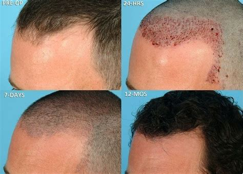 male hair transplant costs hair transplant cost in the uk novacorpus