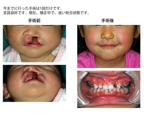 jp departments 医療 奇形の顔 受け入れられない 家族が手術拒否 ミルク飲めず赤ちゃん餓死 アライバル ニュース